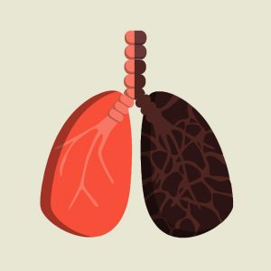Vaporizer Lunge